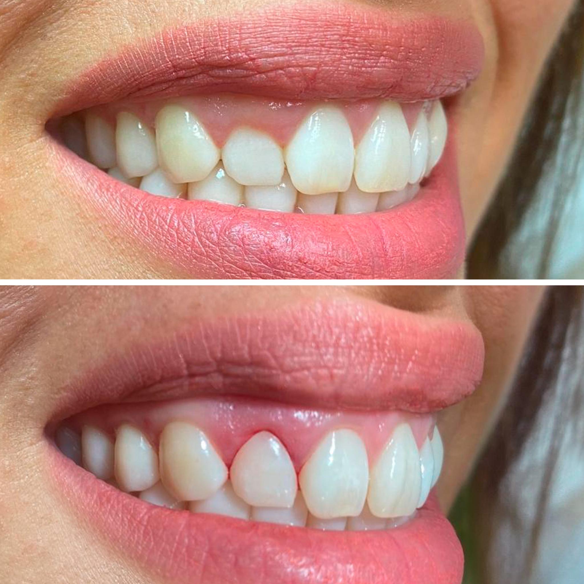 Caso real de odontología restauradora - Clínica Sánchez-Campos