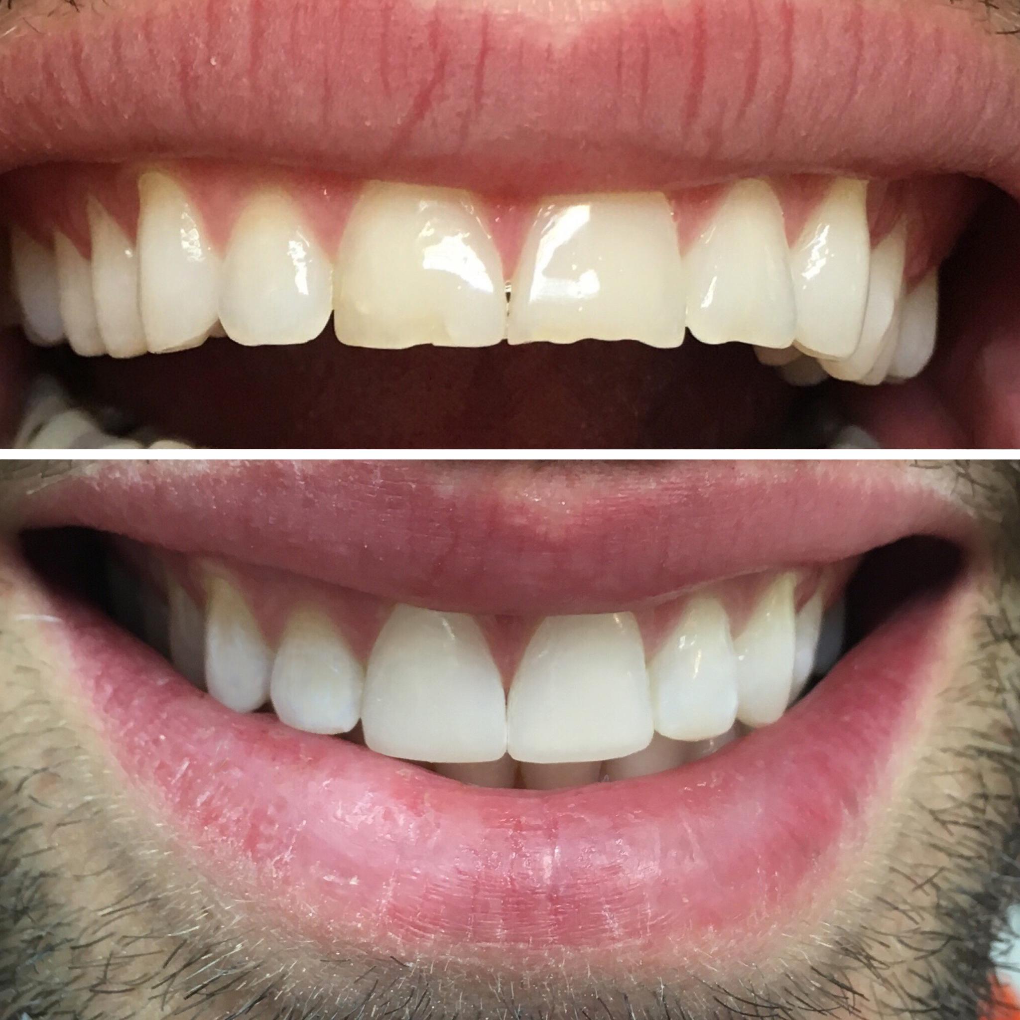 Tratamientos Caso real de rejuvenecimiento de sonrisa - Clínica Sánchez-Campos