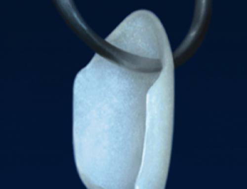 Carillas de porcelana