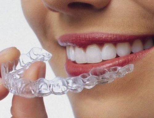 Ortodoncia invisible – Invisalign