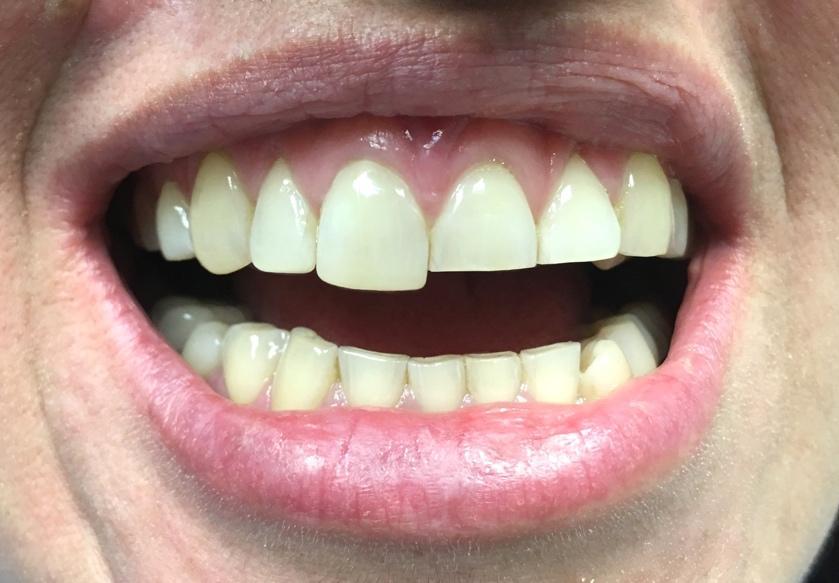 Rejuvenecimiento de sonrisa - tratamiento en Clínica Sánchez-Campos